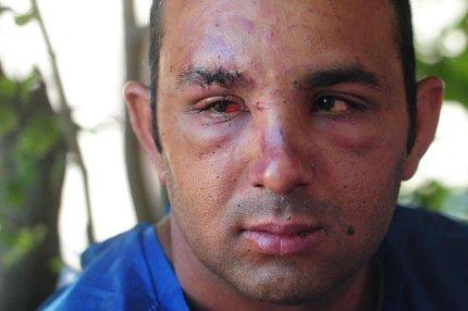 Flávio Rodrigo da Rosa Lopes já havia tido alta no domingo, mas voltou a precisar de atendimento hospitalar (Agência RBS/Bruno Alencastro)