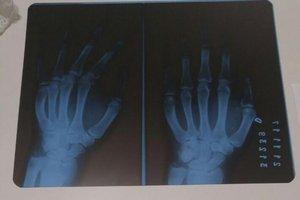 Exames de raio X indicaram a fratura mas, mesmo assim, o paciente não foi encaminhado para tratamento (Arquivo Pessoal/Arquivo Pessoal)