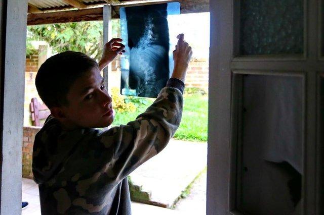 ALVORADA,  RS, BRASIL, 10/06/2019- Escoliose: Patrique Dávila, 14 anos morador de Alvorada vive drama a espera por cirurgia.(FOTOGRAFO: JÚLIO CORDEIRO / AGENCIA RBS)Indexador: Andre Avila