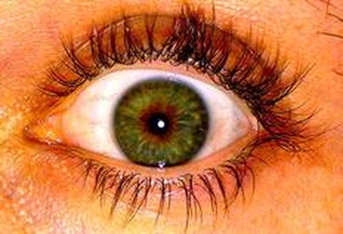 499be9051 Alta sensibilidade à luz pode ser sintoma de infecções ou doenças ...
