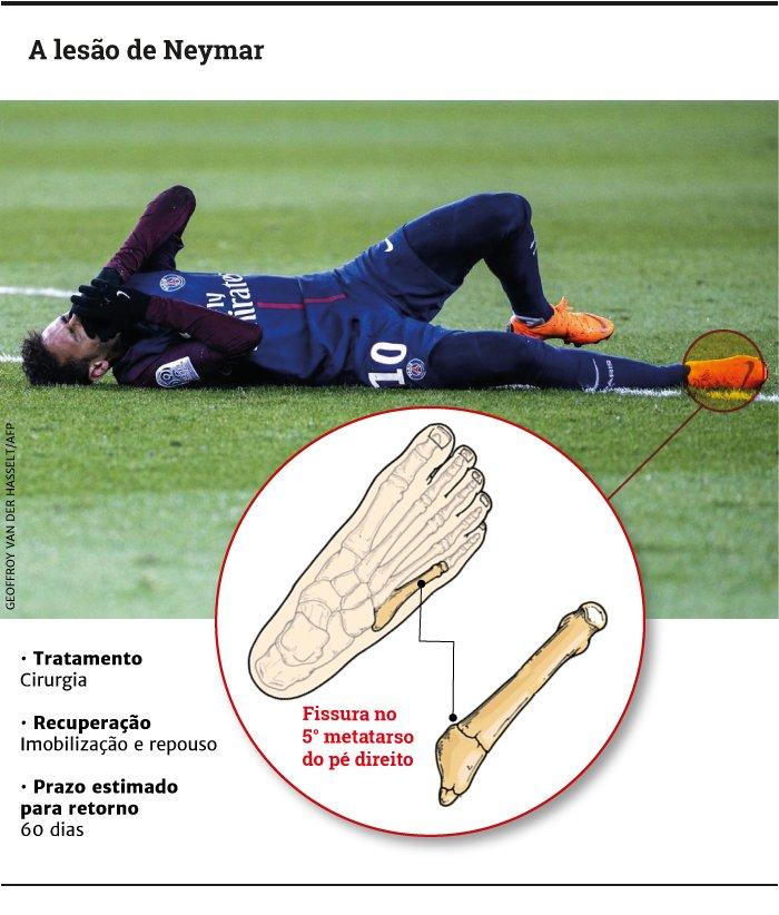 Lesão de Neymar é mais grave e tempo de recuperação aumenta