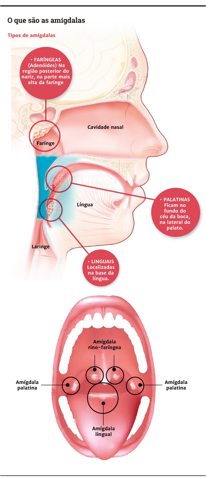 Atractivo Anatomía De Las Amígdalas Garganta Galería - Anatomía de ...