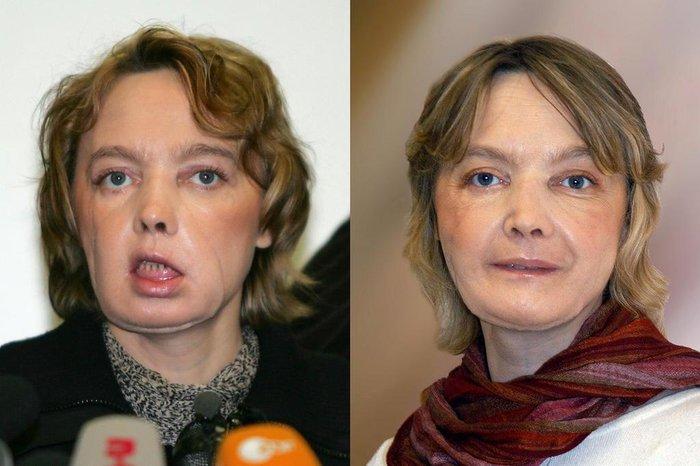 DENIS CHARLET e CHU AMIENS / AFP
