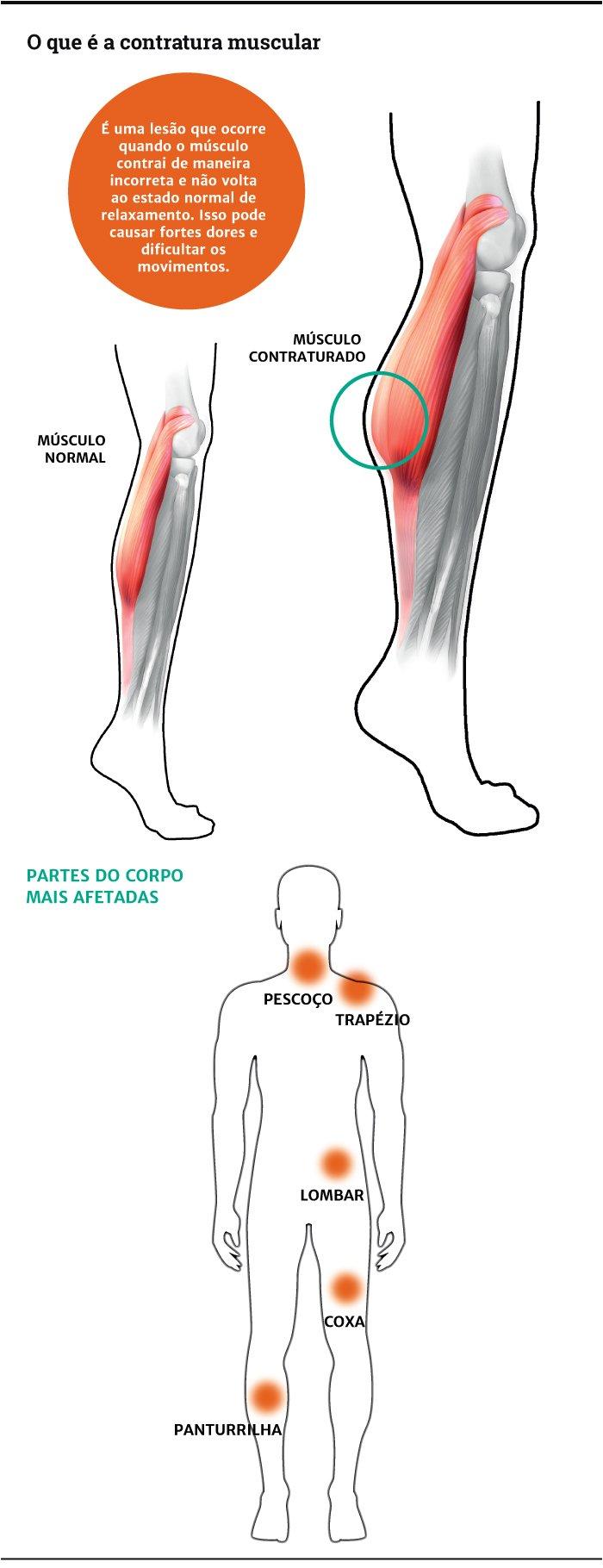 Comum para é um tratamento lesões musculares