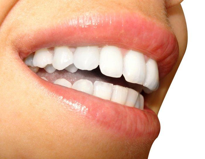 Tire Suas Duvidas Sobre As Tecnicas De Clareamento Dental Donna
