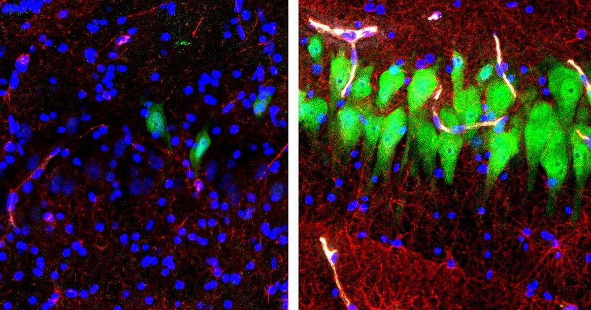 Cientistas revivem células do cérebro de porcos mortos e reacendem debate sobre fim da vida